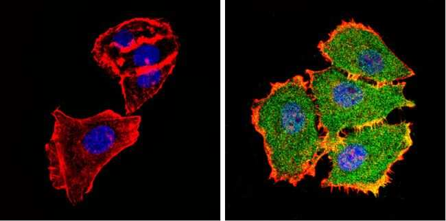 AKT2 Antibody in Immunofluorescence (IF)