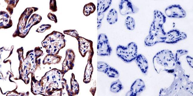 Cytohesin 1/2 Antibody in Immunohistochemistry (IHC)