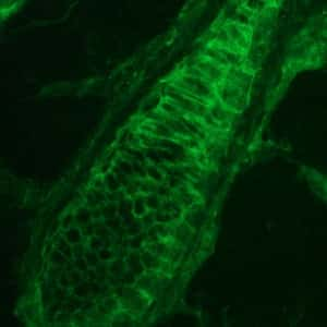 PKP3 Antibody in Immunohistochemistry (IHC)
