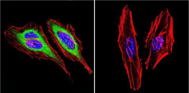 Dynein Antibody in Immunofluorescence (IF)