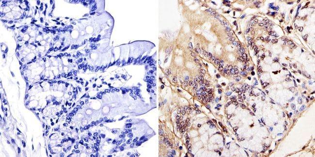 LAP1 Antibody in Immunohistochemistry (IHC)