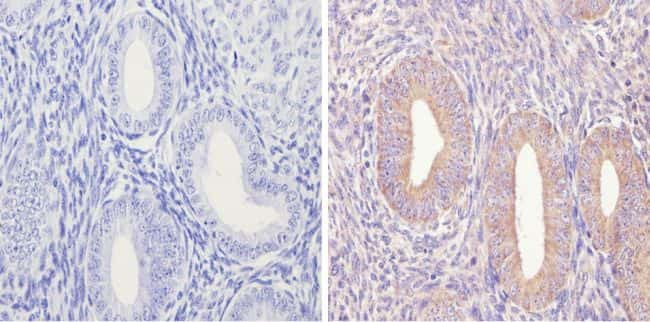 eIF2b gamma Antibody in Immunohistochemistry (Paraffin) (IHC (P))