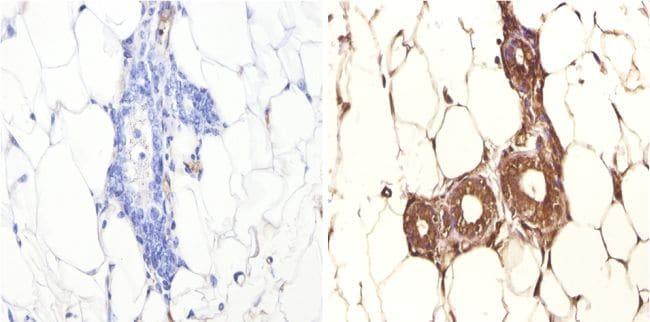 FOXA1 Antibody in Immunohistochemistry (Paraffin) (IHC (P))