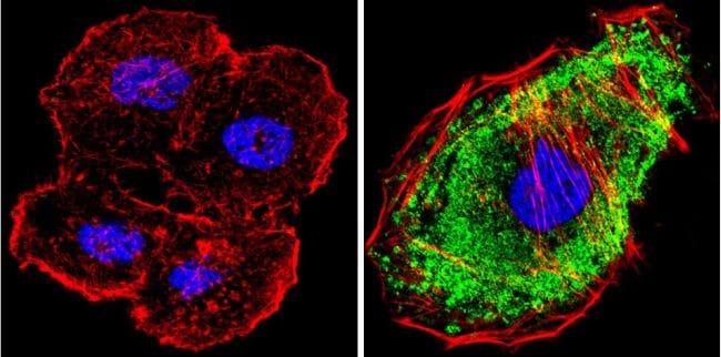 MEK1 Antibody in Immunofluorescence (IF)
