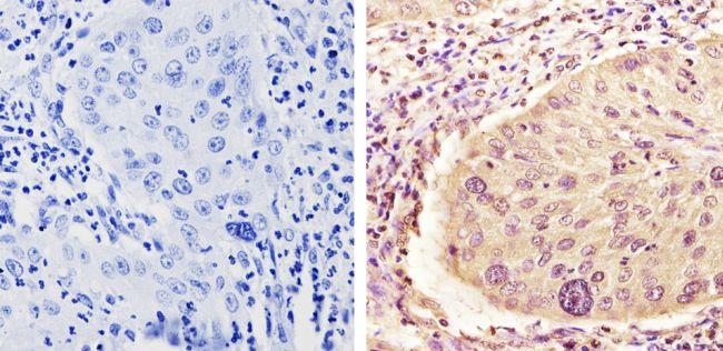 MEK1 Antibody in Immunohistochemistry (Paraffin) (IHC (P))