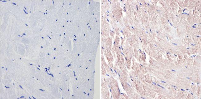 p38 MAPK gamma Antibody in Immunohistochemistry (Paraffin) (IHC (P))
