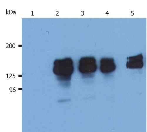 SHIP1 Antibody in Western Blot (WB)