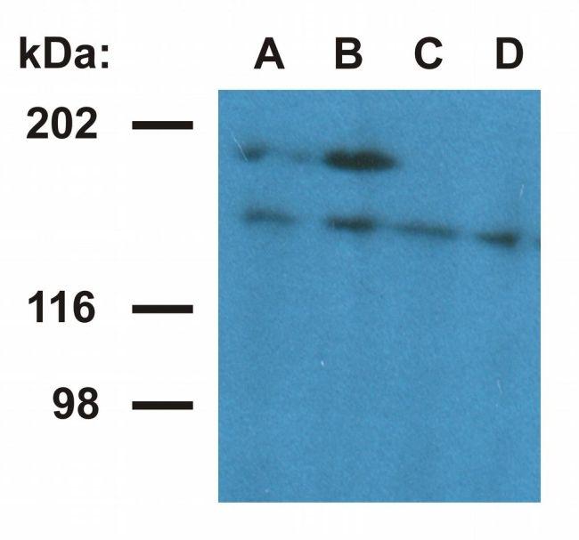 Ubinuclein 1 Antibody in Western Blot (WB)