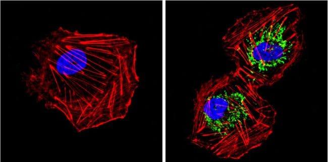 SOD2 Antibody in Immunofluorescence (IF)