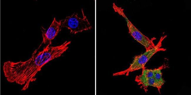 Nestin Antibody in Immunofluorescence (IF)