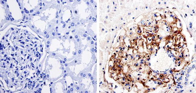 Nestin Antibody in Immunohistochemistry (IHC)