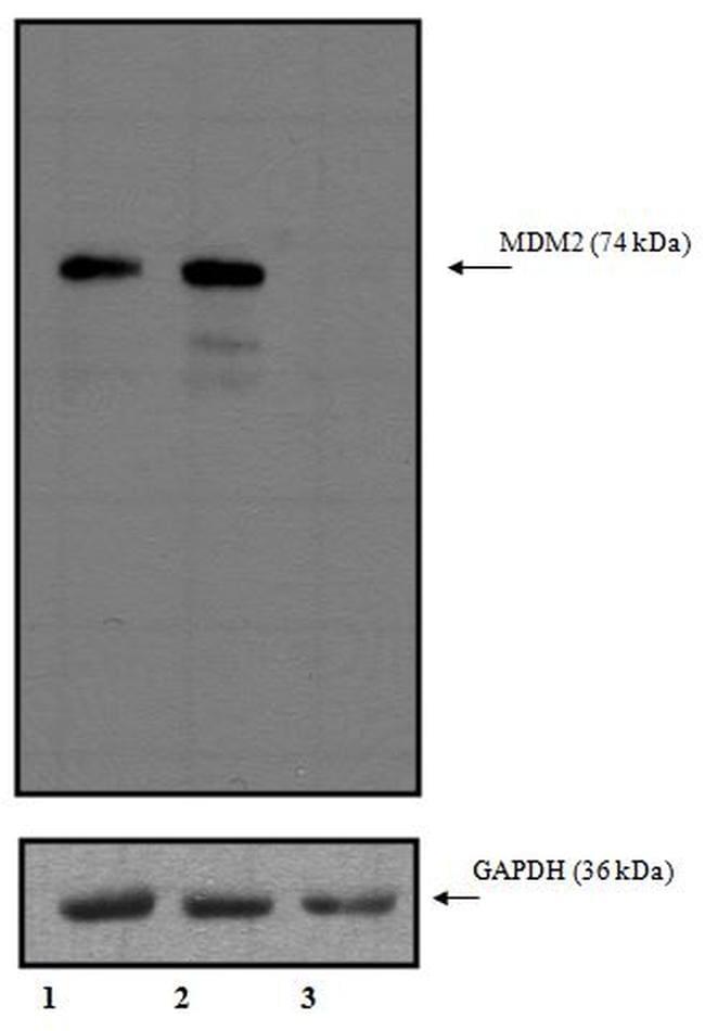 MDM2 Antibody in Knockdown