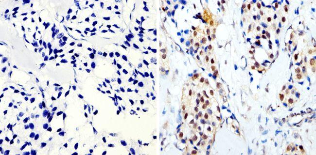 Phospho-CREB/ATF1 (Ser133, Ser63) Antibody in Immunohistochemistry (Paraffin) (IHC (P))