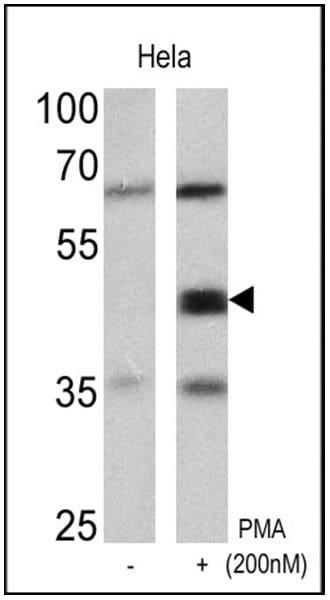 Phospho-CREB/ATF1 (Ser133, Ser63) Antibody in Western Blot (WB)