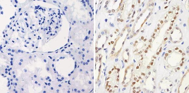 PAX8 Antibody in Immunohistochemistry (Paraffin) (IHC (P))
