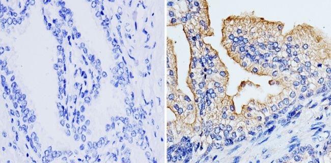 RhoA/RhoC Antibody in Immunohistochemistry (Paraffin) (IHC (P))
