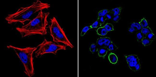 SSEA5 Antibody in Immunofluorescence (IF)