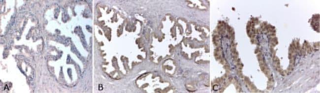 Androgen Receptor Antibody in Immunohistochemistry (Paraffin) (IHC (P))