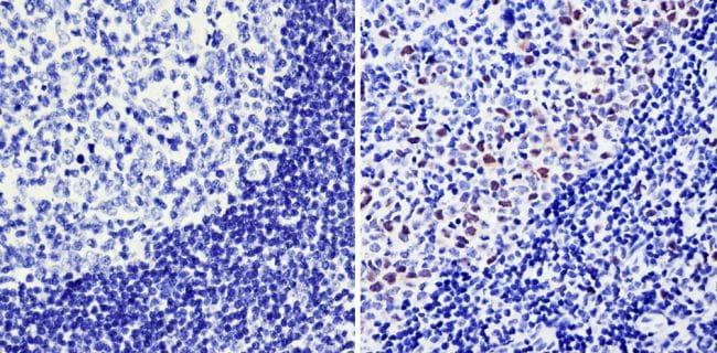 Cyclin A2 Antibody in Immunohistochemistry (Paraffin) (IHC (P))