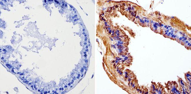 Cyclin B1 Antibody in Immunohistochemistry (Paraffin) (IHC (P))