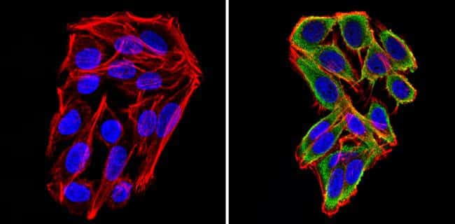 Cyclin B2 Antibody in Immunofluorescence (IF)