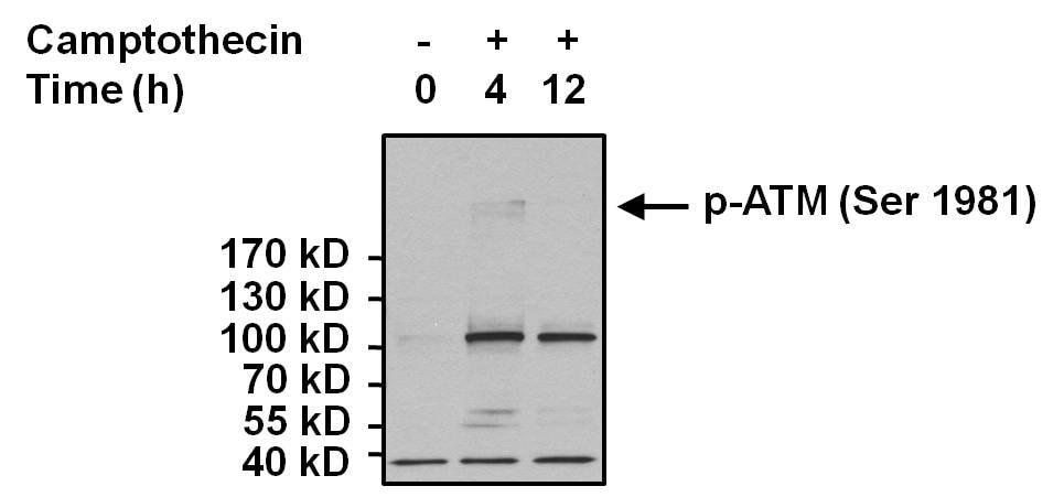 Phospho-ATM (Ser1981) Antibody in Cell treatment