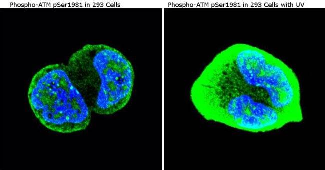 Phospho-ATM (Ser1981) Antibody in Immunofluorescence (IF)