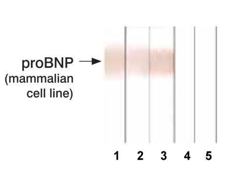 pro-Brain Natriuretic Peptide Antibody in Western Blot (WB)