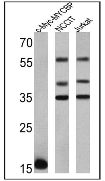 Myc Tag Antibody in Western Blot (WB)