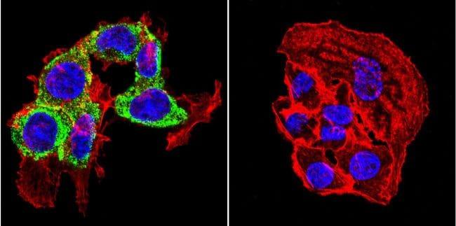 THRA/THRB Antibody in Immunofluorescence (IF)