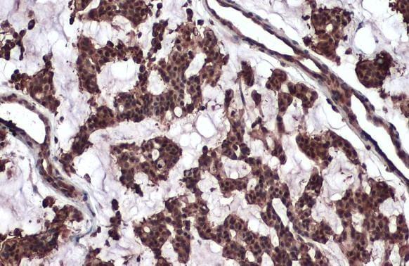 ATM Antibody in Immunohistochemistry (Paraffin) (IHC (P))