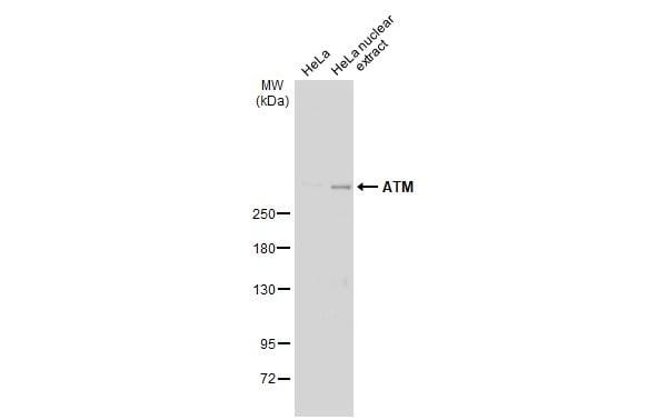 ATM Antibody in Western Blot (WB)