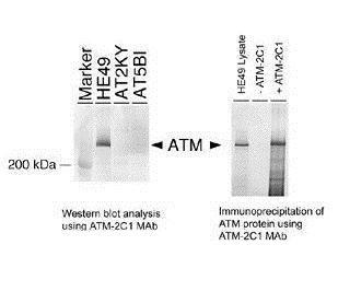 ATM Antibody in Immunoprecipitation (IP)