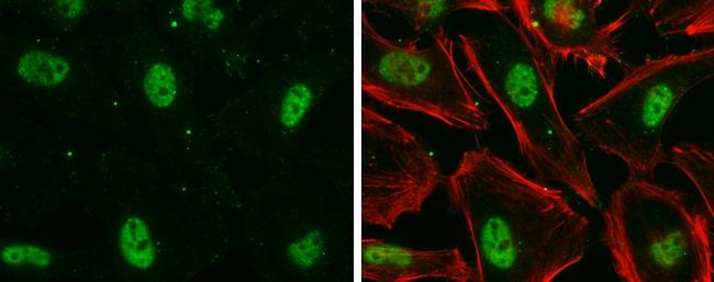 Nuclear Matrix Protein p84 Antibody in Immunocytochemistry (ICC)