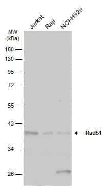 RAD51 Antibody in Western Blot (WB)