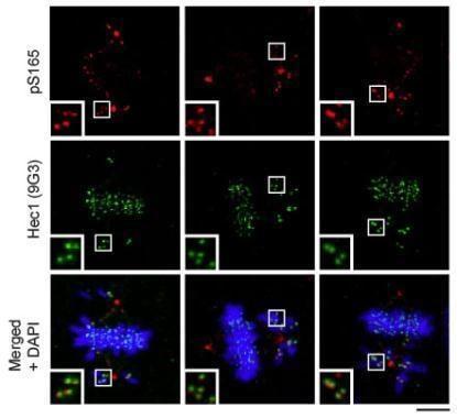 HEC1 Antibody in Immunocytochemistry (ICC/IF)