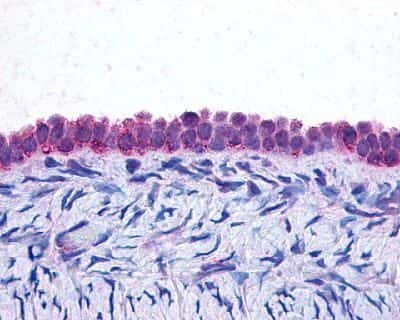 C/EBP beta Antibody in Immunohistochemistry (IHC)