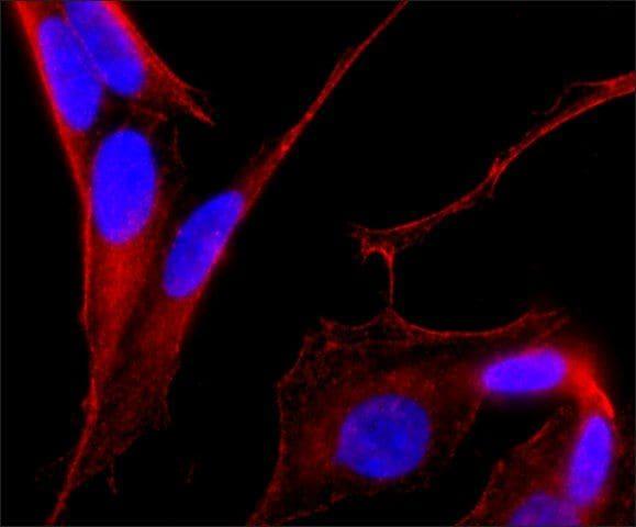 MAP2 Antibody in Immunocytochemistry (ICC)