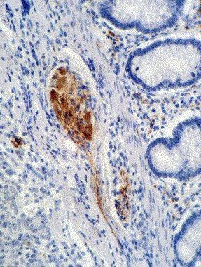 p21 Antibody in Immunohistochemistry (Paraffin) (IHC (P))