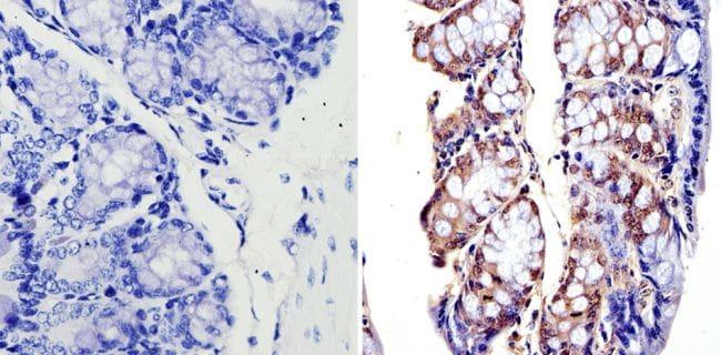 APE1 Antibody in Immunohistochemistry (Paraffin) (IHC (P))