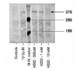 Phospho-ATM (Ser1981) Antibody in Western Blot (WB)
