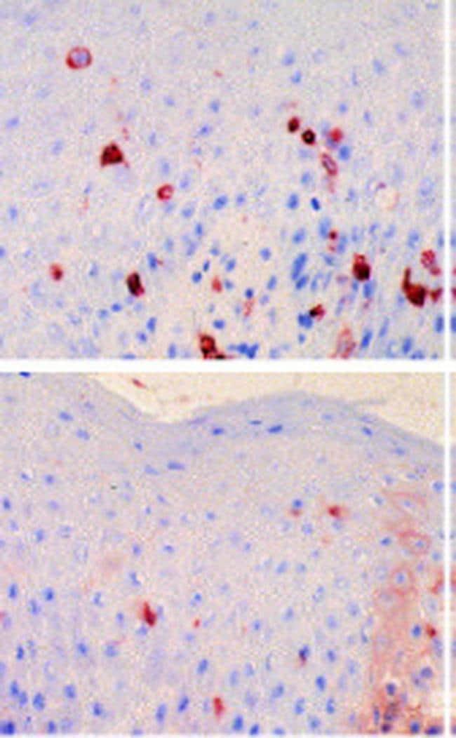 FceR1 alpha Antibody in Immunohistochemistry (IHC)