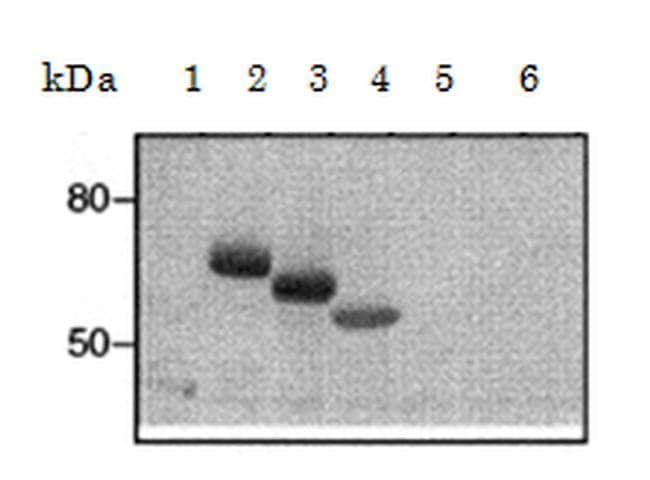 FceR1 alpha Antibody in Western Blot (WB)