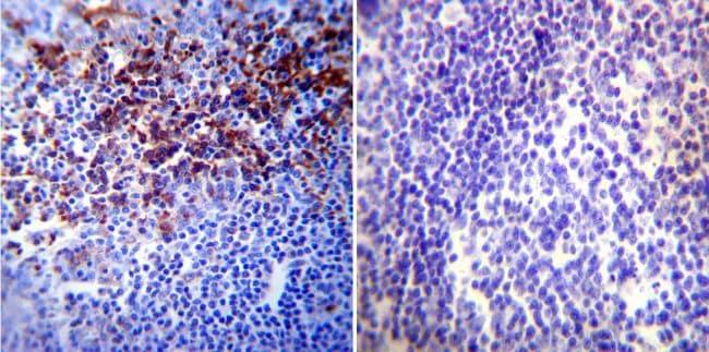 HIF1A Antibody in Immunohistochemistry (Paraffin) (IHC (P))
