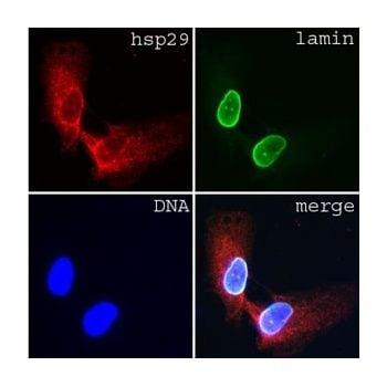 Lamin A/C Antibody in Immunocytochemistry (ICC/IF)