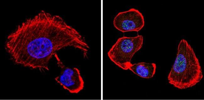 VDR Antibody in Immunofluorescence (IF)