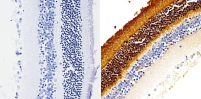 Rhodopsin Antibody in Immunohistochemistry (Paraffin) (IHC (P))