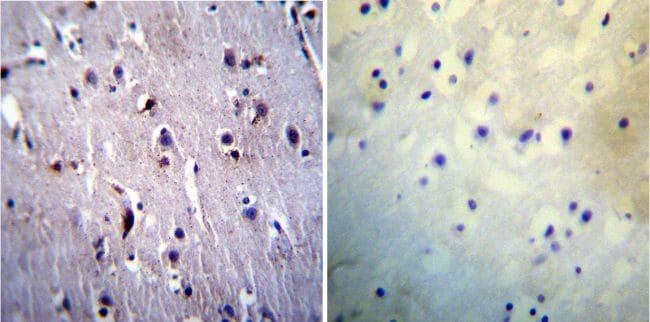 Presenilin 1 Antibody in Immunohistochemistry (IHC)
