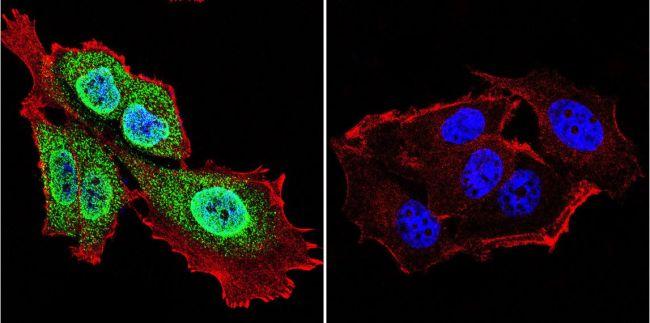 Presenilin 1 Antibody in Immunofluorescence (IF)