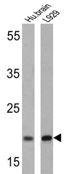 PSEN2 Antibody in Western Blot (WB)